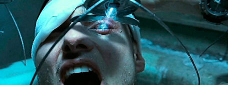 Frame of the film Minority Report in which the newly operated protagonist is supervised by a spider robot.